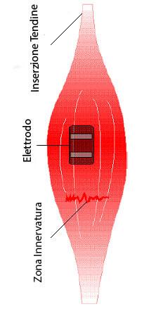 elettrostimolatore come posizionare elettrodi